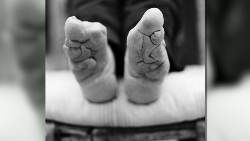 Foot Binding, entrevisttas.com
